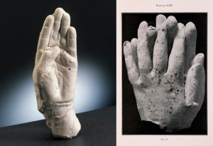 Scientists conducted experiments in which materialized hands dipped themselves into molten paraffin wax during the séances of Polish physical medium Franek Kluski